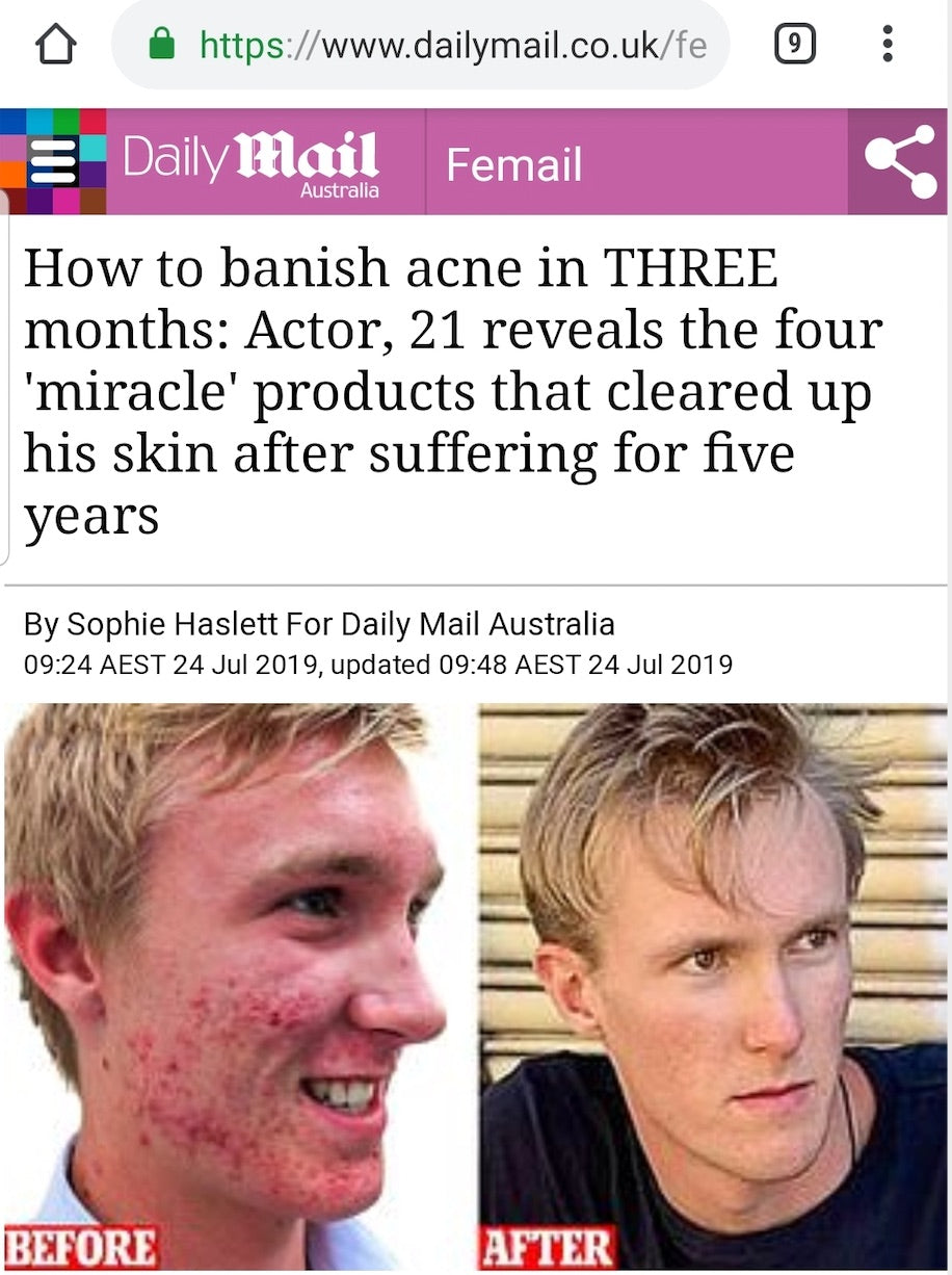 Daily Mail article - SkinB5 case study severe acne