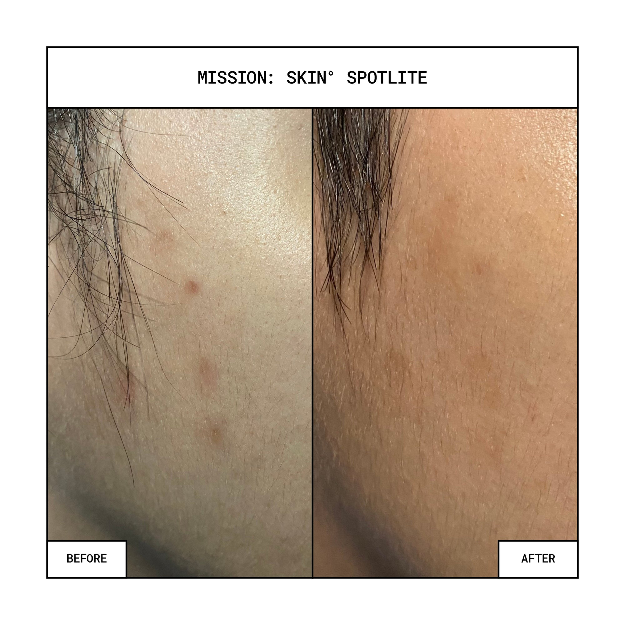 MISSION: SKIN° SpotLite Acne Spot Concentrate 10mL