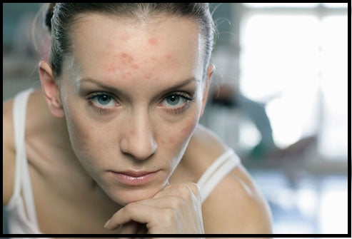 pregnant woman with acne