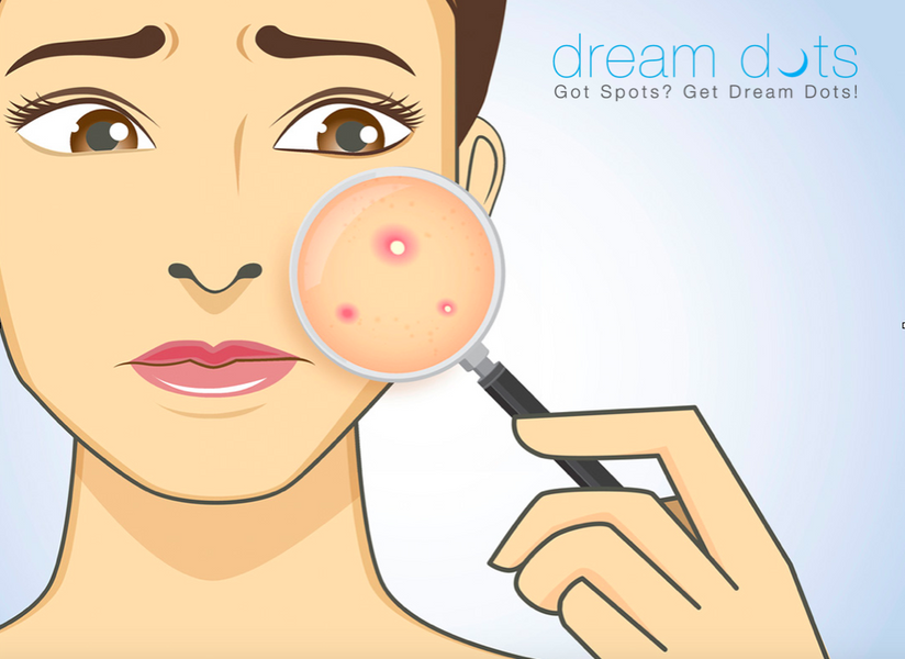 Zap Your Zits, No Matter Where They Are - Face Map Dream Dots