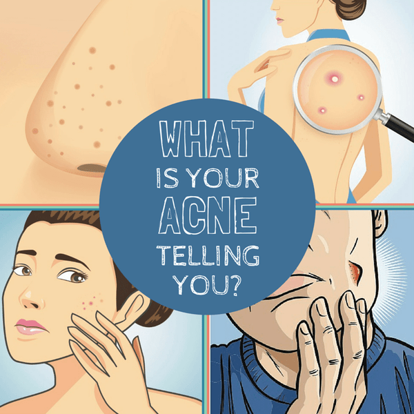 I Get Body Acne, Chest Acne, Butt Acne. What Is My Body Telling Me?