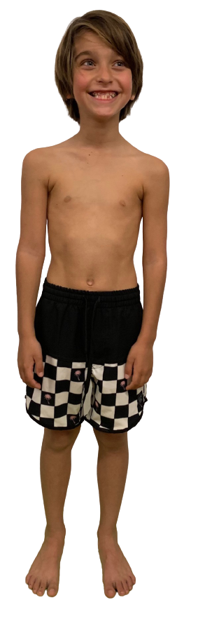 Kyma Kid's Chessboard Palm Boardshorts