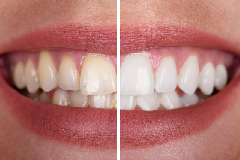 teeth whitening kit results
