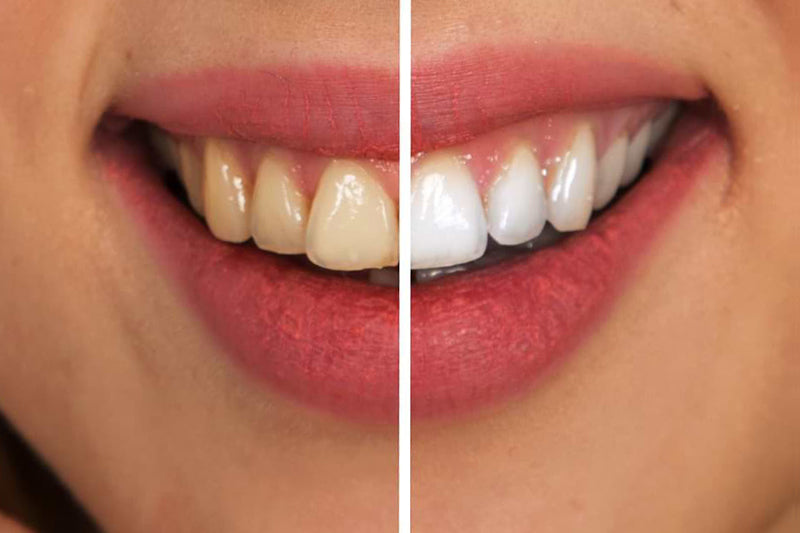 teeth whitening results before after
