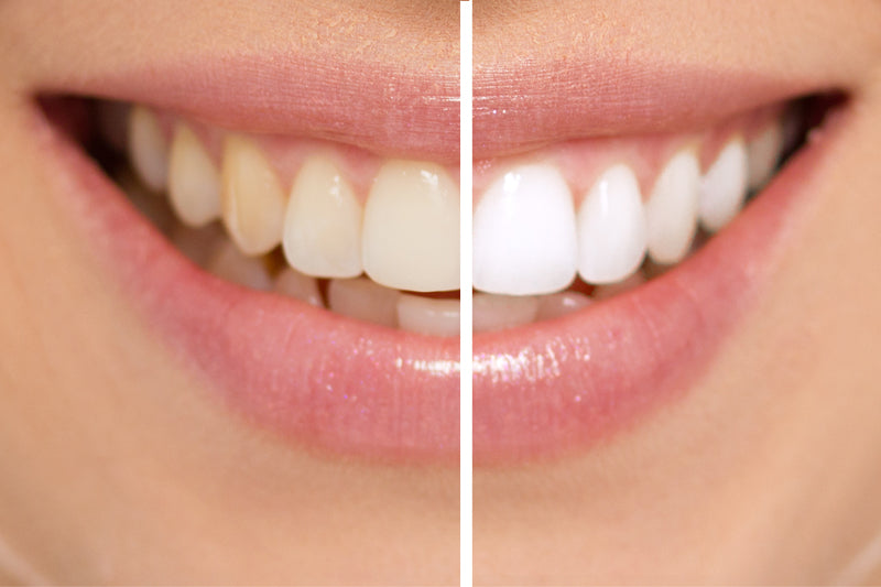 home teeth whitening before and after