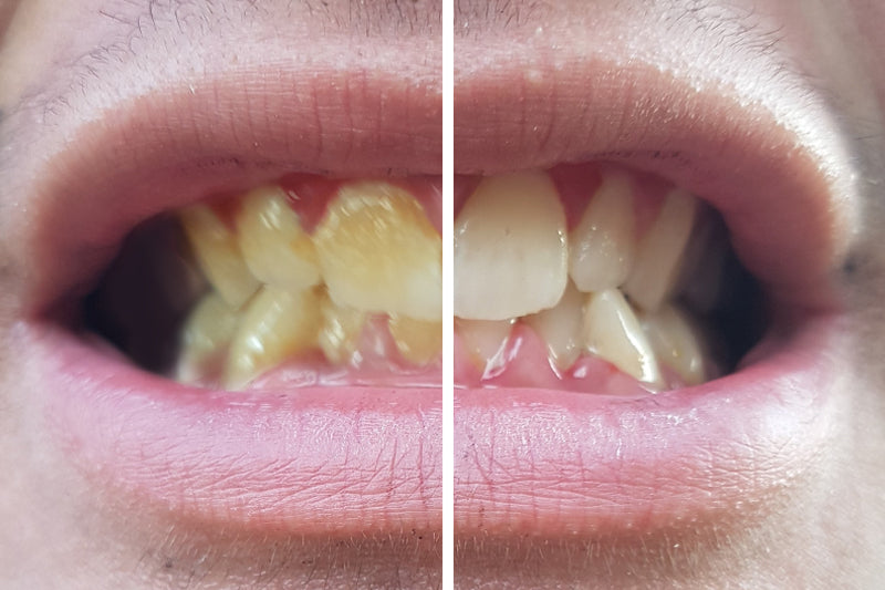 teeth whitening at home best results