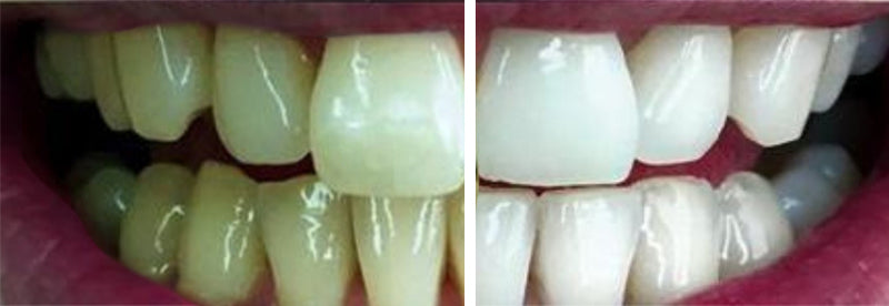 natural teeth whitening before and after