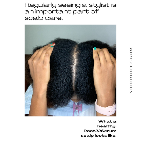 Your scalp requires regular cleansing and moisturizing.
