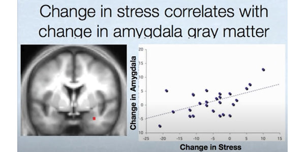 Change in Stress and Brain Grey Matter