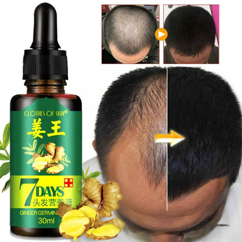 Ginger Hair Growth Essence 7 Days Germinal Hair Growth Serum Essence Oil Hair Loss Treatment Growth Hair for Men Women