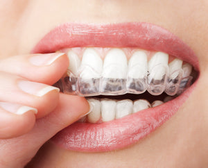 Affordable Alternative to Invisible Braces?