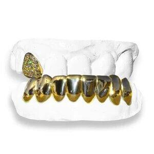 The Jimmy-yellow-gold-grillz