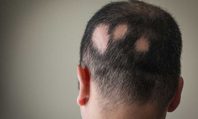 The Real Hair Loss of Pathological Origin
