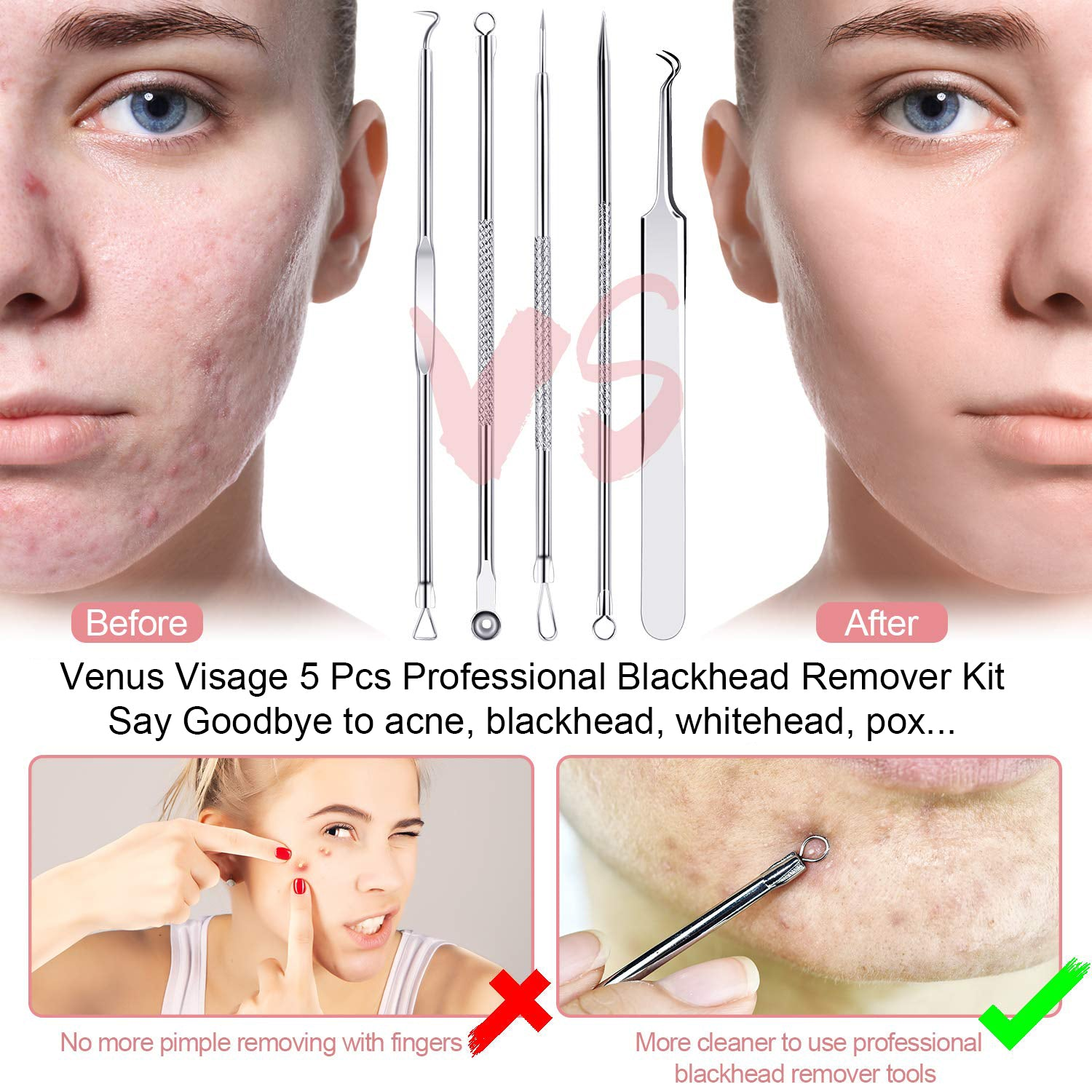 Venus Visage Blackhead Remover Pore Vacuum Electric Blackhead Cleaner USB Rechargeable Acne Comedone Extractor Kit with 5 Adjustable Suction Power and 6 Suction Heads