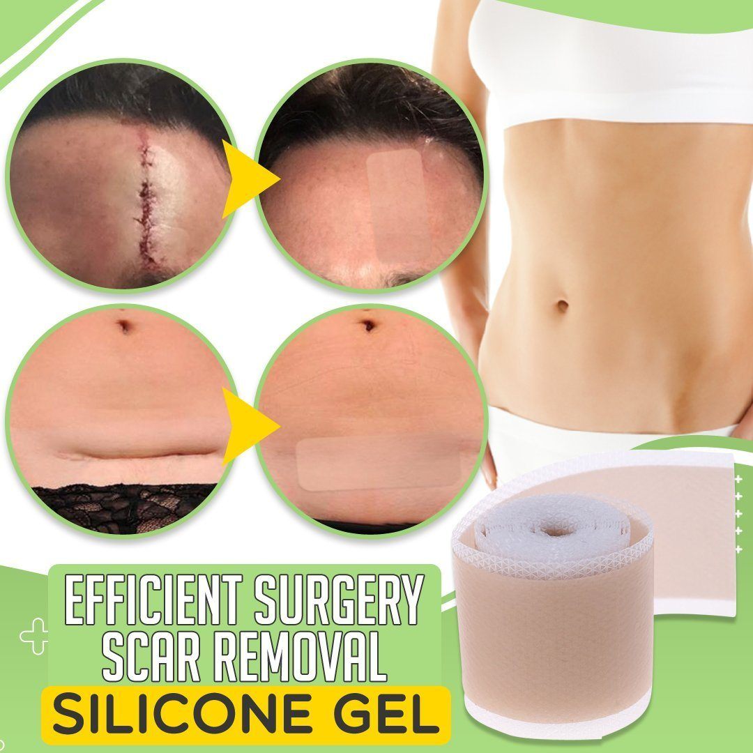 Efficient Surgery Scar Removal Silicone Gel