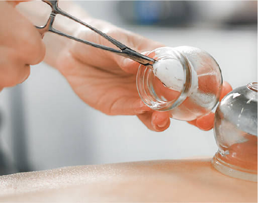 Healing Benefits of Cupping