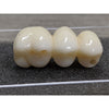 TLZ-SR Bridge without Abutments