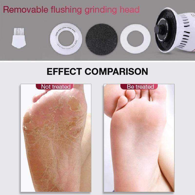 Electric Callus Remover Tool With Derma-Vac Technology