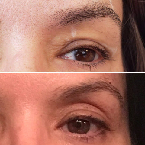 Before and After Eye Area