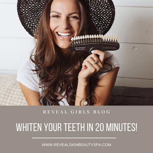 Whiten Your Teeth in 20 Minutes!