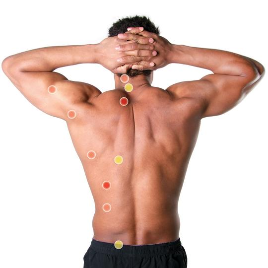 Body Trigger Points