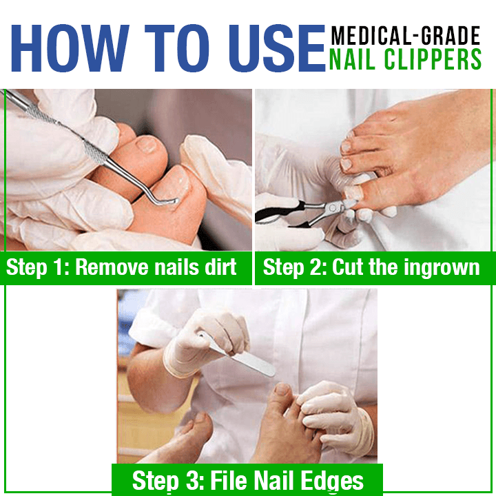 Medical-grade Nail Clipper