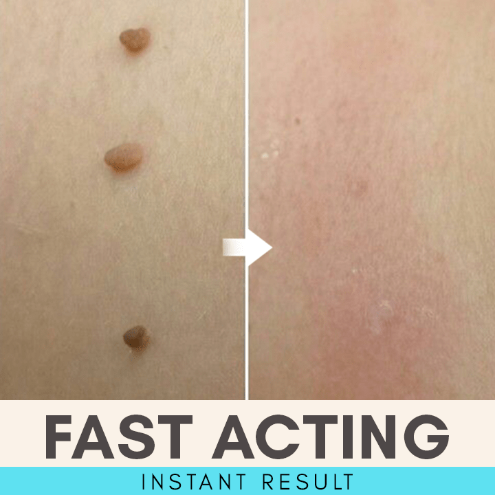 Skin Tag Eliminating Patches