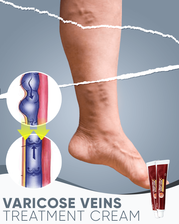 Varicose Vein Therapy Cream - Meao B