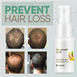 GingerGrowth™ Hair Regrow Spray