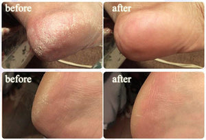 Anti-Swelling Foot SPA - Meao B