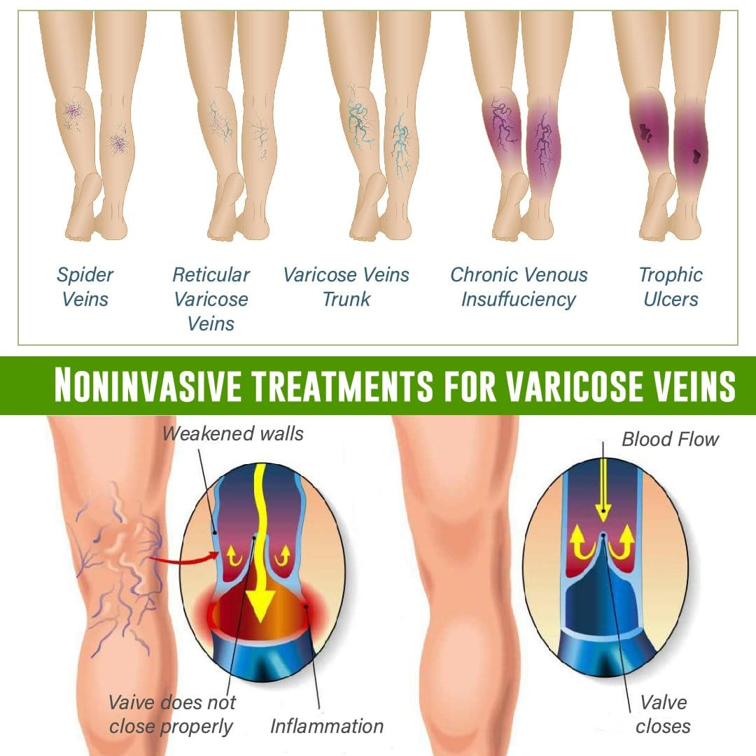 VeinClear Herbal Varicose Vein Patch