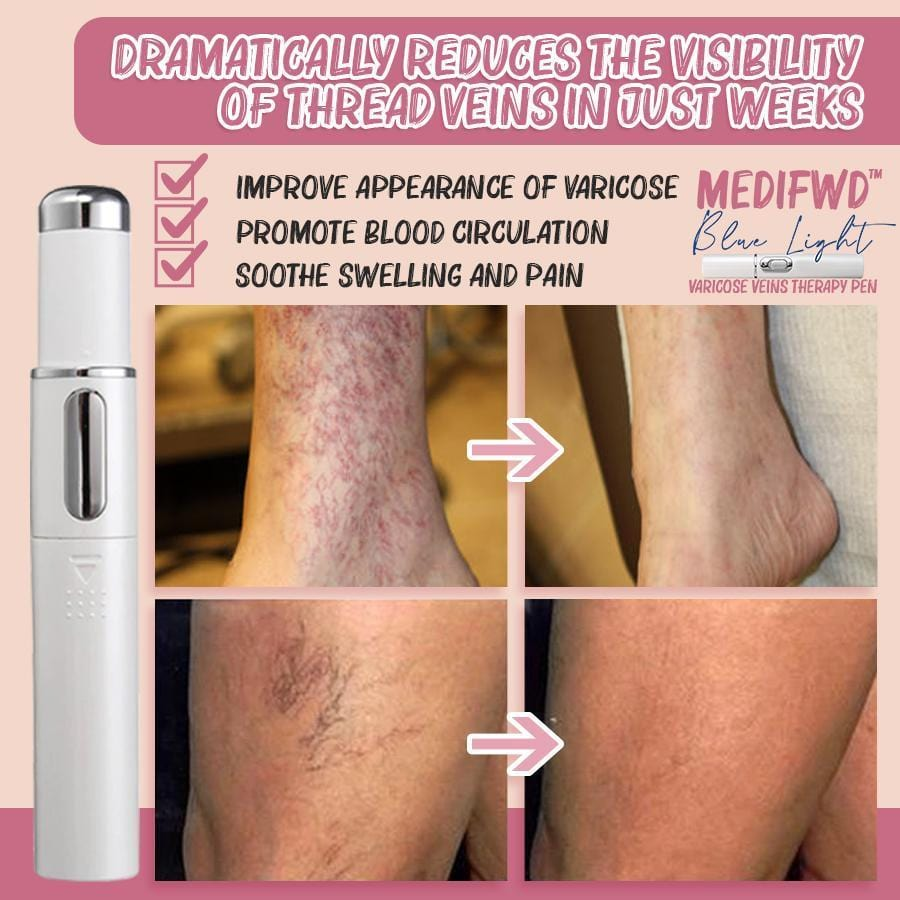 MediFwd™ Blue Light Varicose Veins Therapy Pen - Meao B