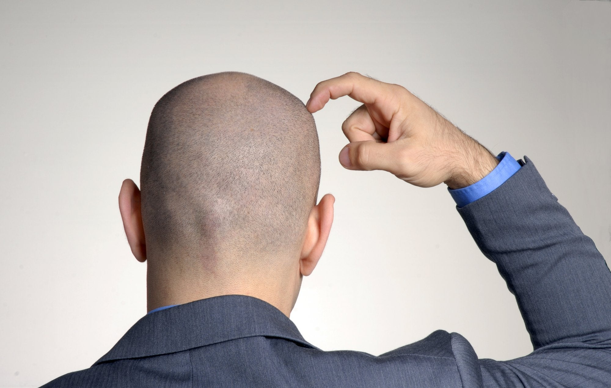 Make good to look how bald How To