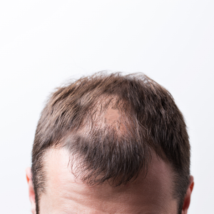 Patchy Bald Spots on Head.