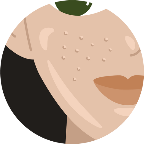 illustration of a person's cheek with oily skin