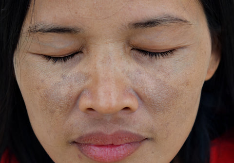 Melasma and dark spots on the face of an Asian woman