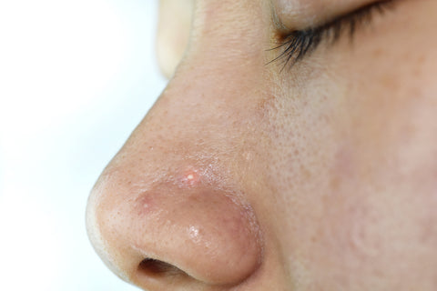 Close up woman face with whitehead pimples on nose