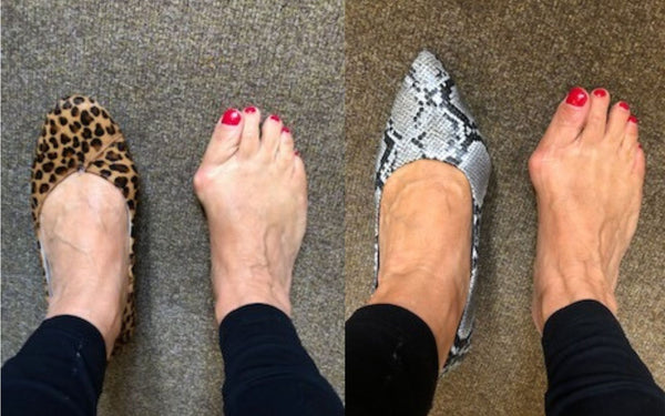 customer review of ava kitten heels and charlotte flats for bunions
