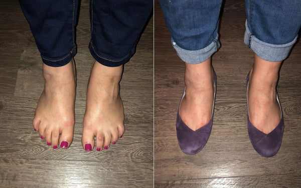 customer review of calla charlotte flat shoes for bunions and plantar fasciitis