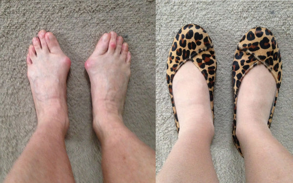 customer review of charlotte leopard suede flats for bunions and wide feet