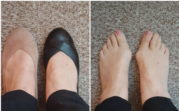 flat shoes for bunions customer review for calla shoes
