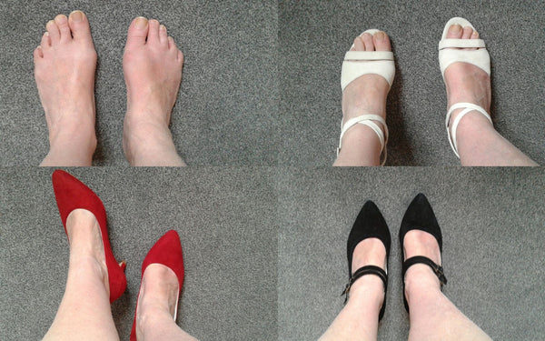 review of heels for bunions by calla shoes comfortable and fashionable
