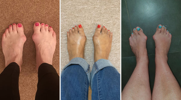why people have bunions the reasons and causes bunion feet