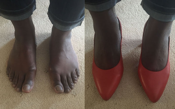 customer reviews of red leather heels for bunions