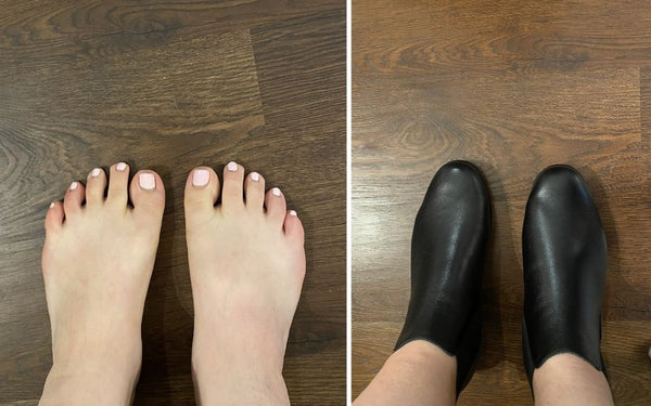 review of calla shoes for bunions by carol