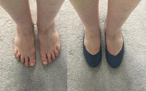 a photo of feet and a photo of feet in shoes