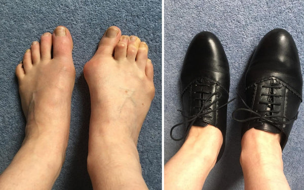 review of calla shoes for bunions by fiona
