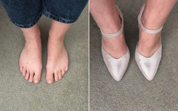 review of calla shoes for bunions by customer