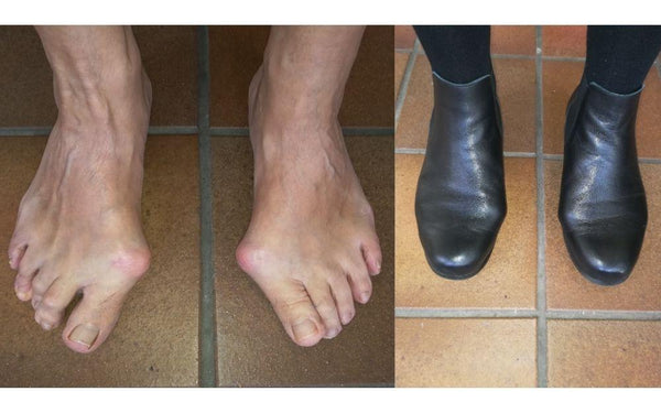 review of calla shoes for bunions by lesley