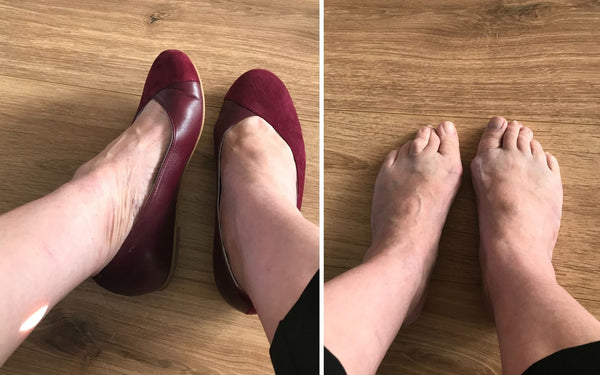 customer review of calla shoes for bunions